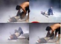 Đồng Nai: Hút thuốc khi đổ xăng, nạn nhân bỏng nặng